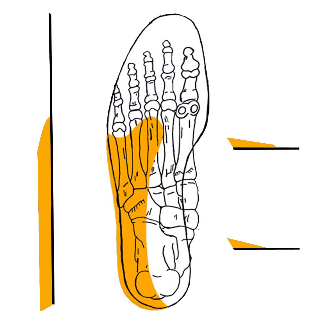 Les douleurs au Genou//au Dos et la tendinite dAchille,la fasciite Plantaire W-XY Semelle orthop/édique pour Soutien de la vo/ûte Plantaire int/égrale Contre la Douleur au Talon